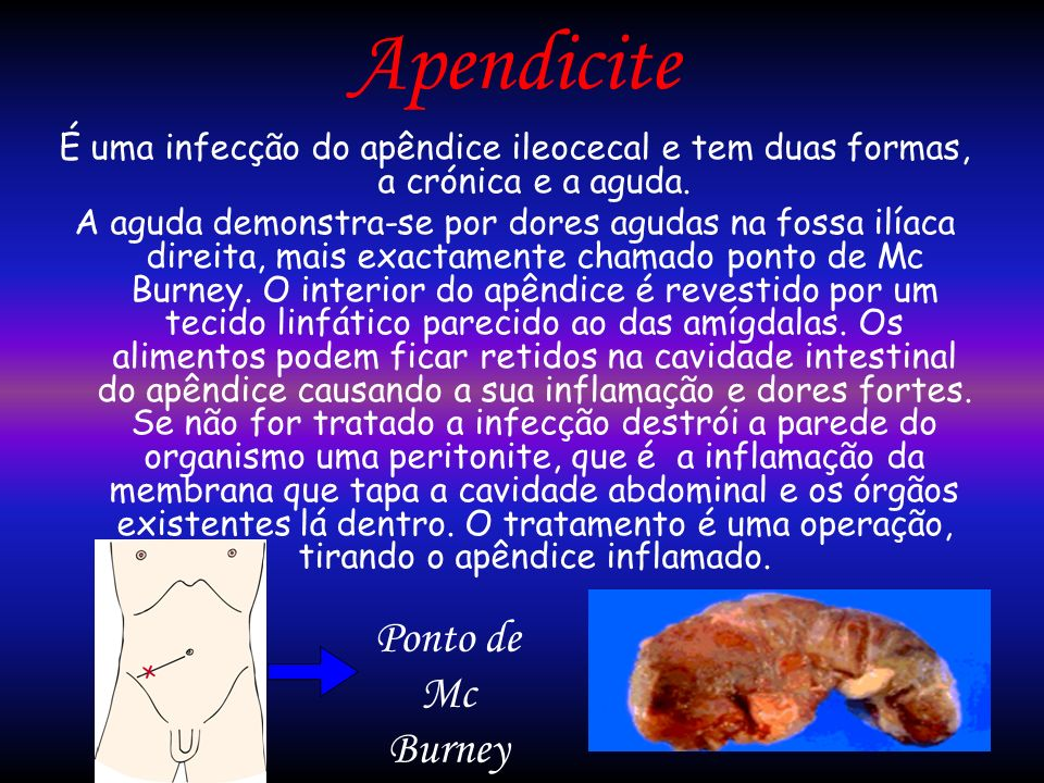 Apendicite É uma infecção do apêndice ileocecal e tem duas formas, a crónica e a aguda. A aguda demonstra-se por dores agudas na fossa ilíaca direita,
