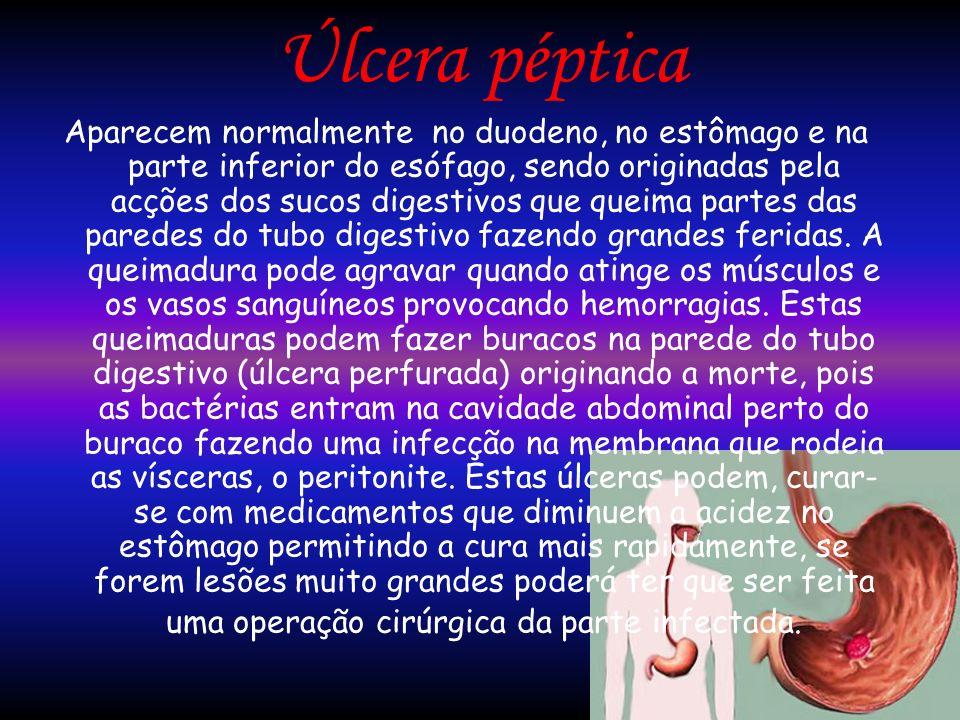 Úlcera péptica Aparecem normalmente no duodeno, no estômago e na parte inferior do esófago, sendo originadas pela acções dos sucos digestivos que quei