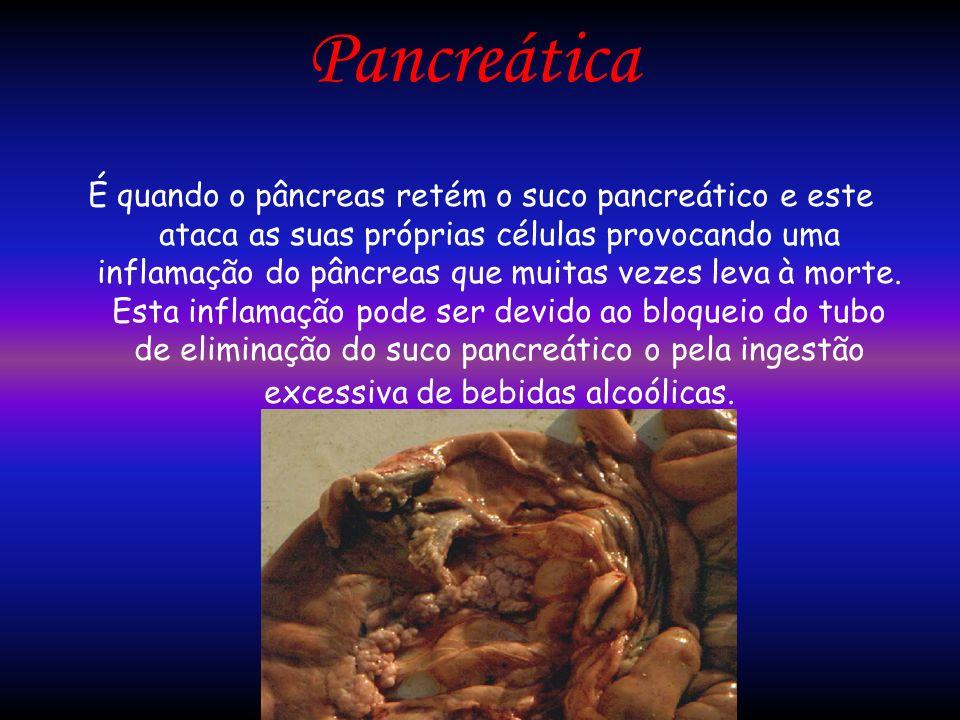Pancreática É quando o pâncreas retém o suco pancreático e este ataca as suas próprias células provocando uma inflamação do pâncreas que muitas vezes