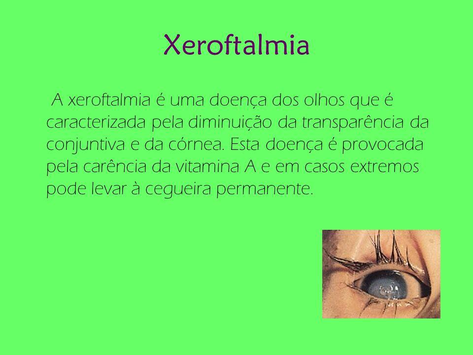 Xeroftalmia A xeroftalmia é uma doença dos olhos que é caracterizada pela diminuição da transparência da conjuntiva e da córnea. Esta doença é provoca