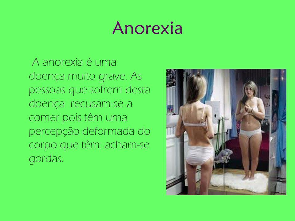 Anorexia A anorexia é uma doença muito grave. As pessoas que sofrem desta doença recusam-se a comer pois têm uma percepção deformada do corpo que têm: