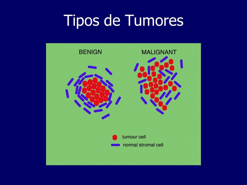 Tipos de Tumores