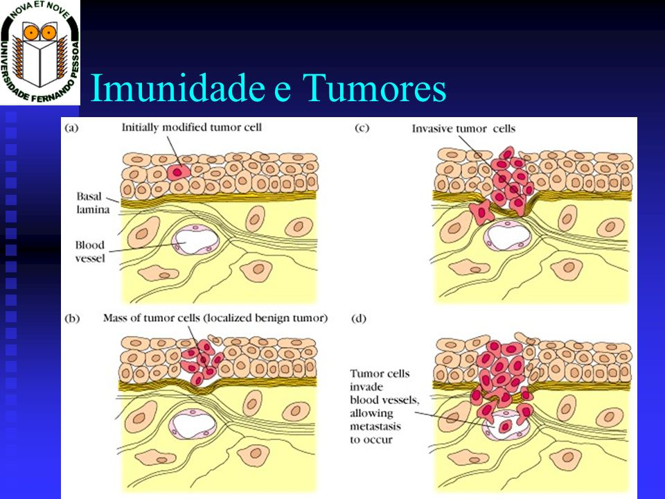 Imunidade e Tumores