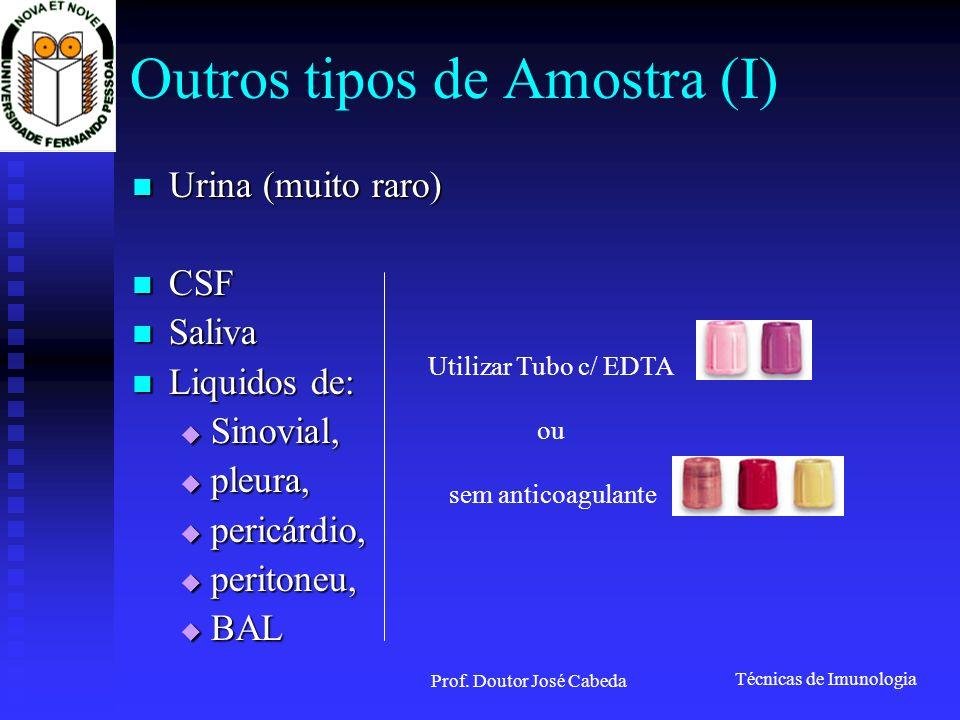 Técnicas de Imunologia Prof. Doutor José Cabeda Resolver problemas do ELISA
