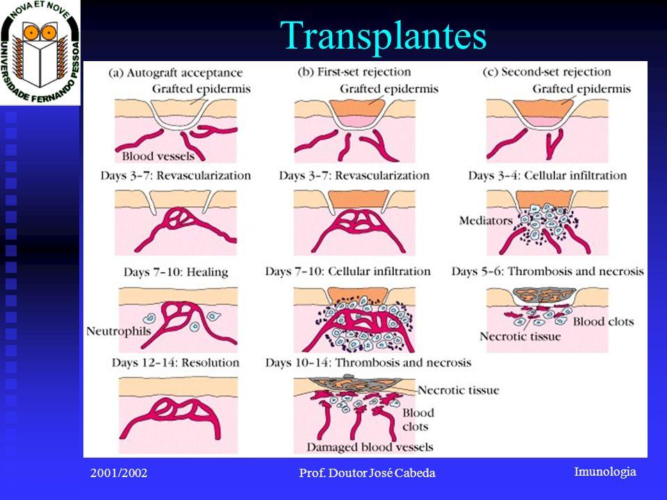 Imunologia 2001/2002Prof. Doutor José Cabeda Transplantes