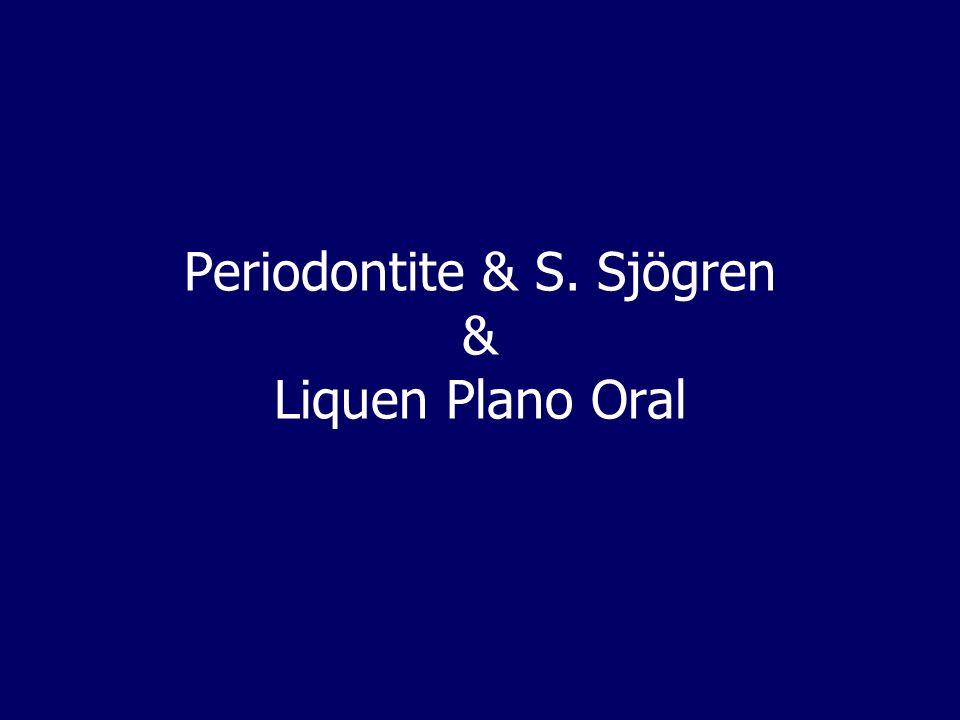 Periodontite & S. Sjögren & Liquen Plano Oral