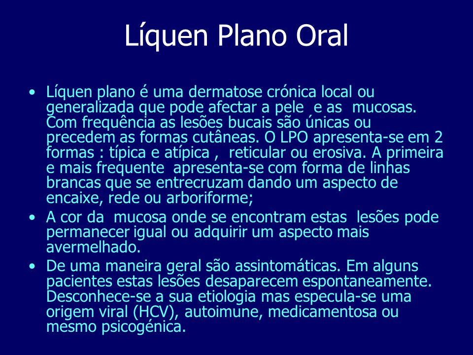 Líquen Plano Oral Líquen plano é uma dermatose crónica local ou generalizada que pode afectar a pele e as mucosas. Com frequência as lesões bucais são