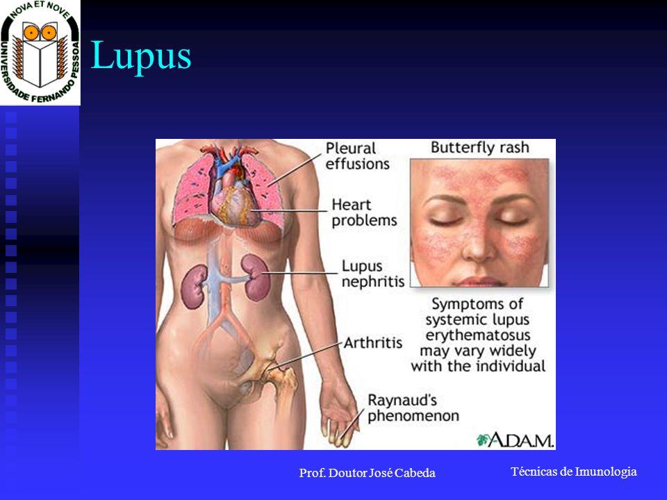 Técnicas de Imunologia Prof. Doutor José Cabeda Lupus