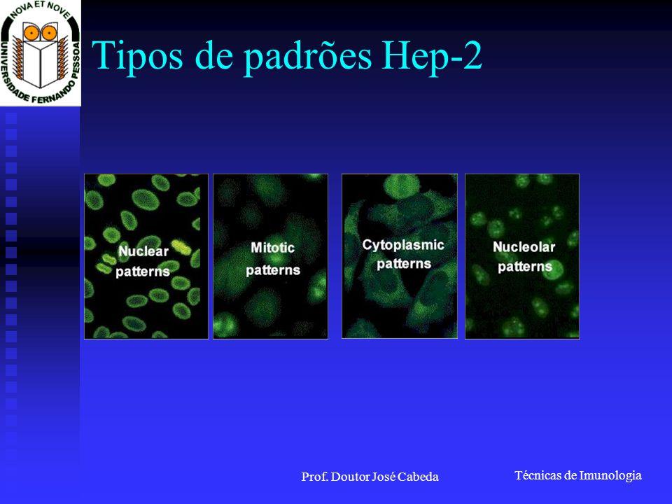 Técnicas de Imunologia Prof. Doutor José Cabeda Tipos de padrões Hep-2