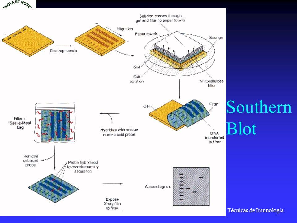 Técnicas de Imunologia Prof. Doutor José Cabeda Southern Blot