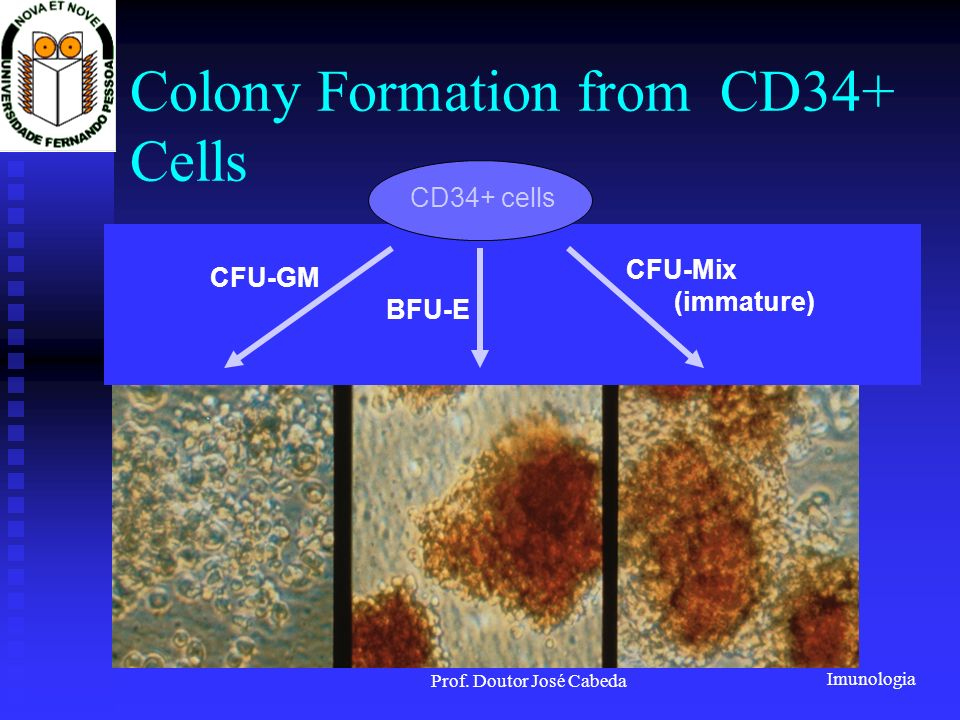 Imunologia Prof. Doutor José Cabeda Colony Formation from CD34+ Cells CFU-GM BFU-E CFU-Mix CD34+ cells (immature)