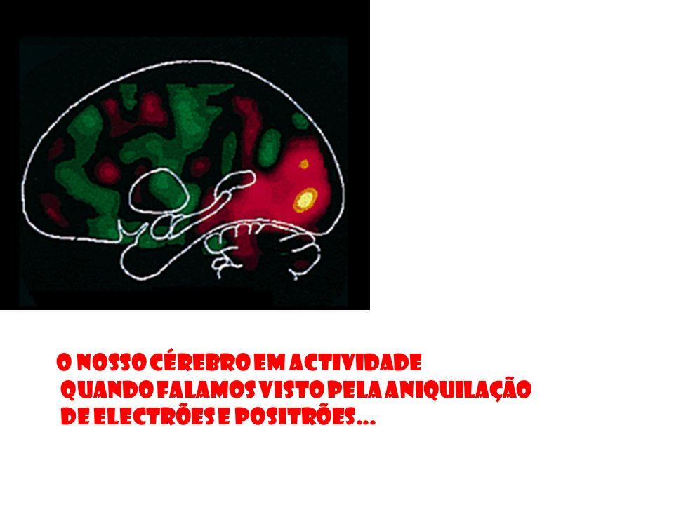 O nosso cérebro em actividade quando falamos visto pela aniquilação de electrões e positrões...