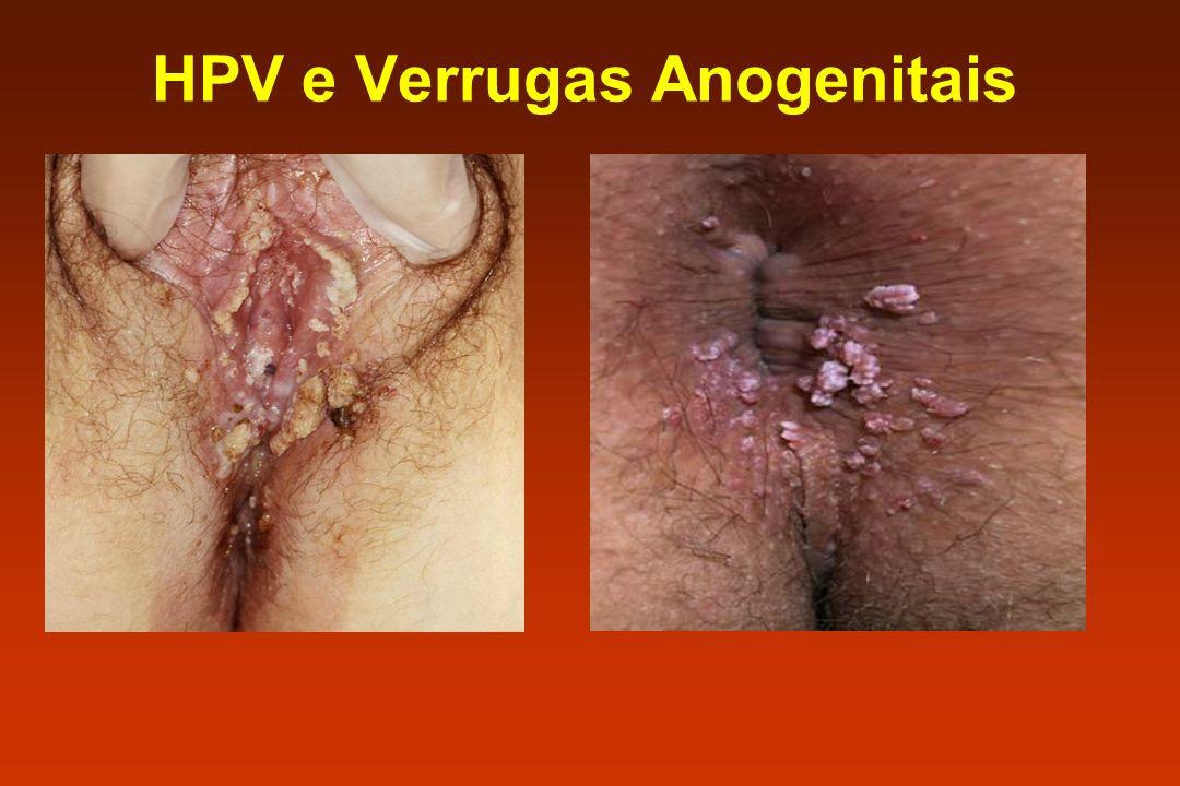 HPV e Verrugas Anogenitais