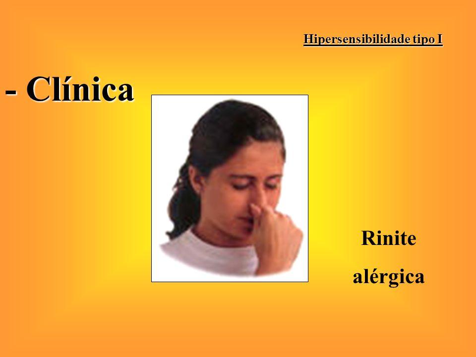 Hipersensibilidade tipo I - Clínica Asma