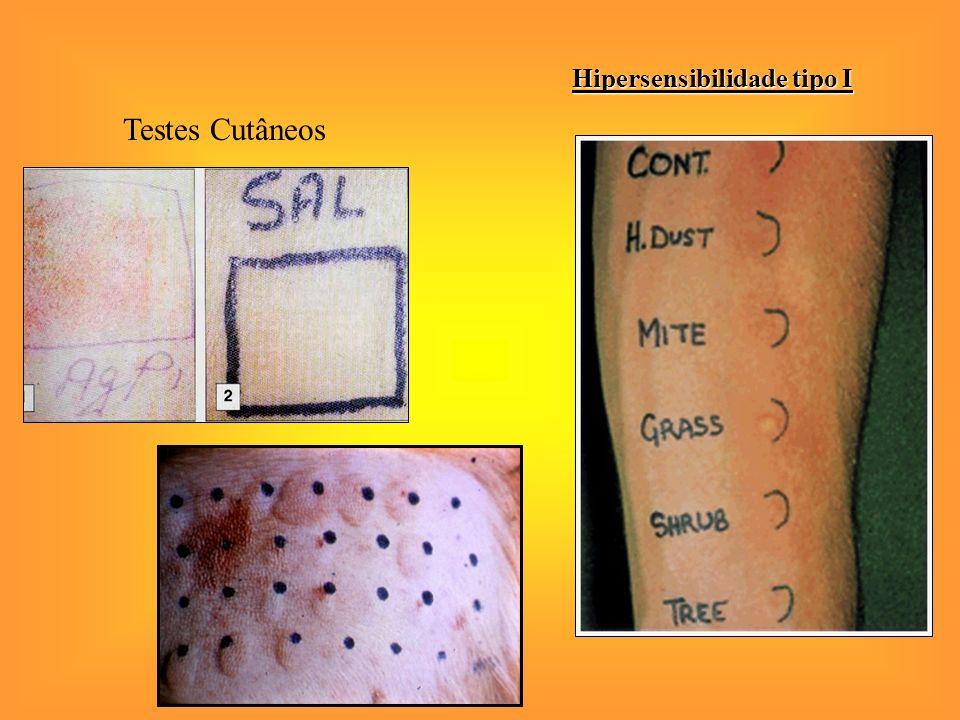 Hipersensibilidade tipo I Testes Cutâneos (prick-test)