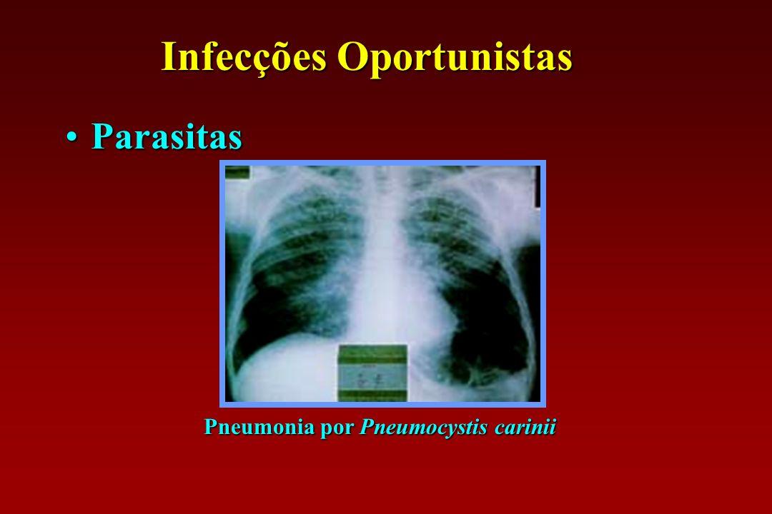 Infecções Oportunistas ParasitasParasitas Leishmaniose Visceral