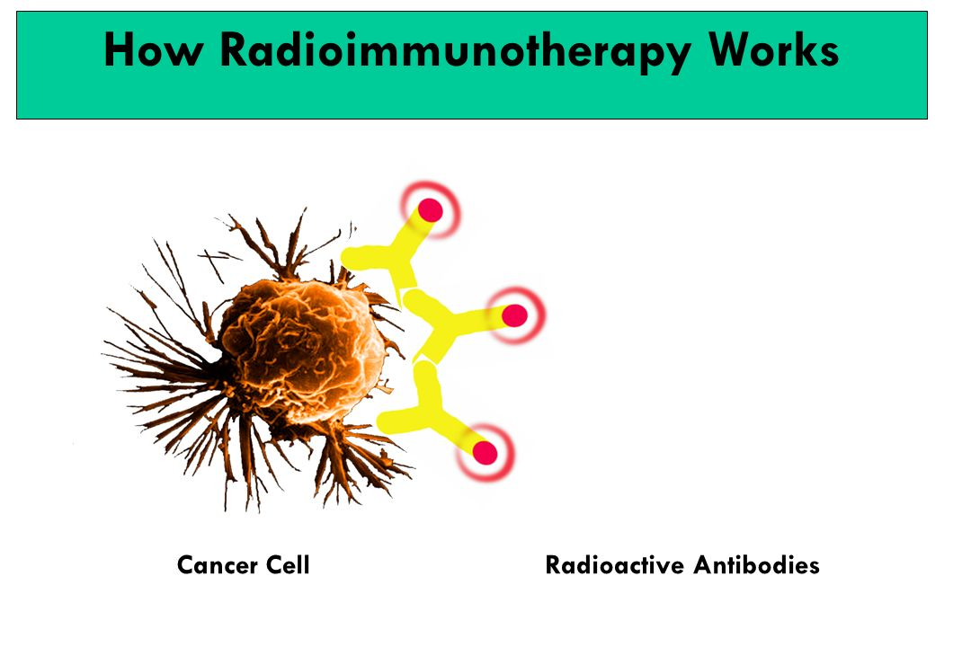 Cancer CellRadioactive Antibodies How Radioimmunotherapy Works
