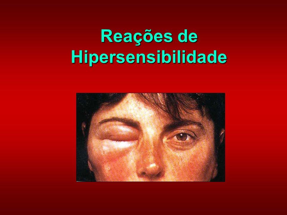 Anafilaxia (grego) ana = contra phylax = proteção Epinefrina (adrenalina) – droga de escolha Alérgenos = introduzidos por picadas de insetos, penicilina, etc