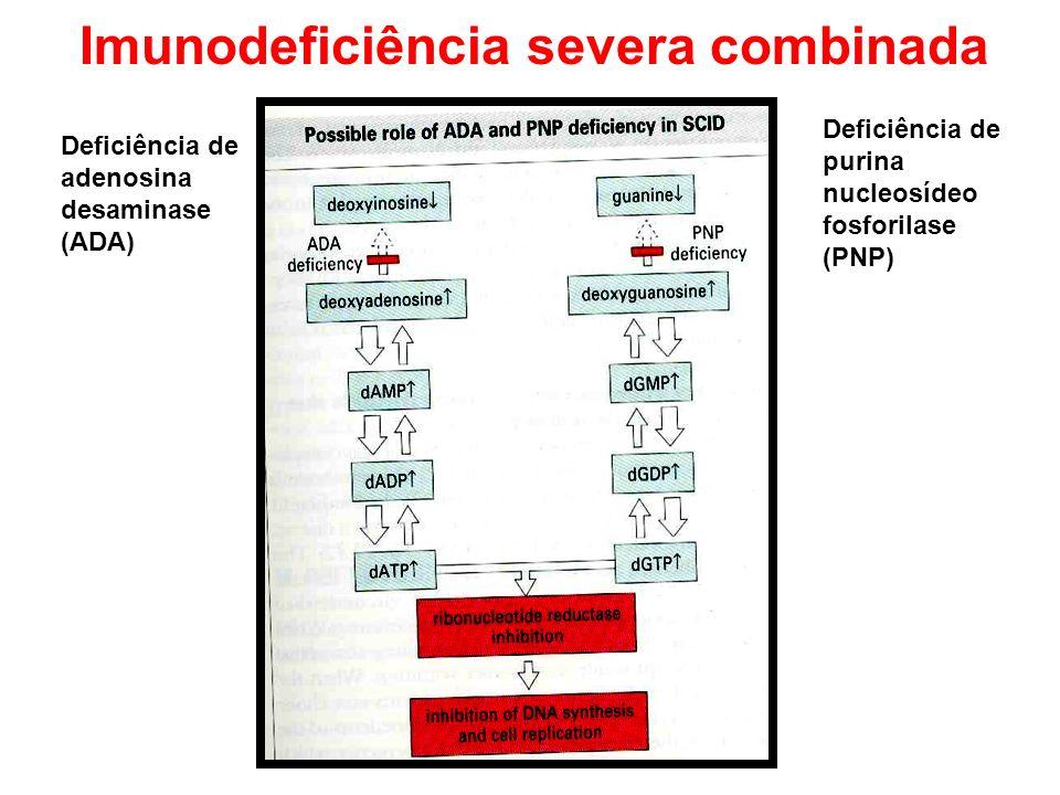 Deficiência de adenosina desaminase (ADA) Deficiência de purina nucleosídeo fosforilase (PNP)
