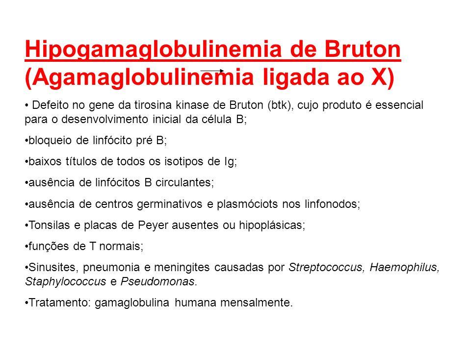 Hipogamaglobulinemia de Bruton (Agamaglobulinemia ligada ao X) Defeito no gene da tirosina kinase de Bruton (btk), cujo produto é essencial para o des