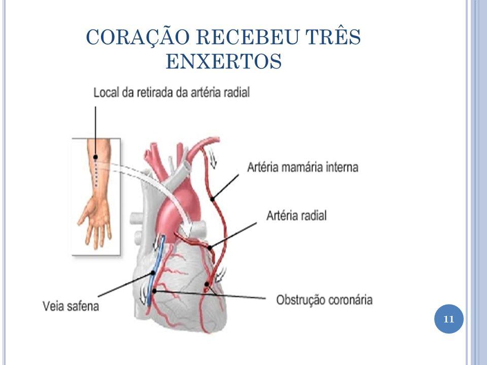 CORAÇÃO RECEBEU TRÊS ENXERTOS 11