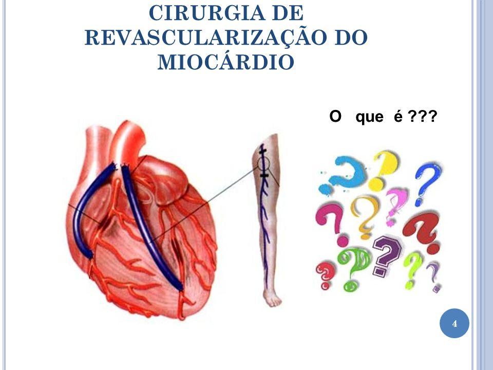 É um procedimento cirúrgico no coração que visa restabelecer a oferta de sangue ao coração que apresenta uma ou mais artérias obstruídas.