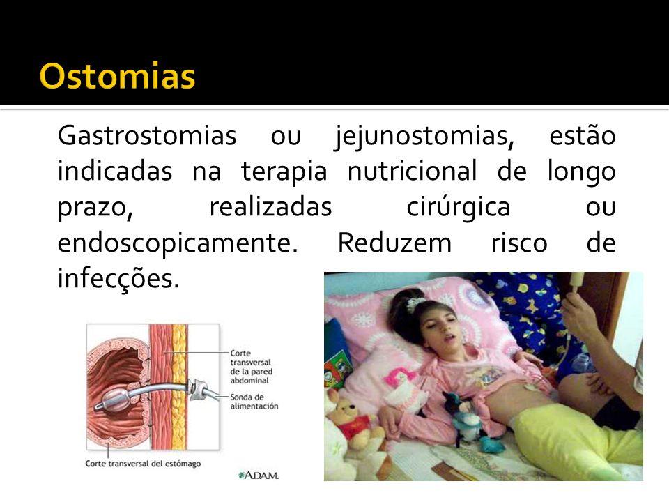 Gastrostomias ou jejunostomias, estão indicadas na terapia nutricional de longo prazo, realizadas cirúrgica ou endoscopicamente.
