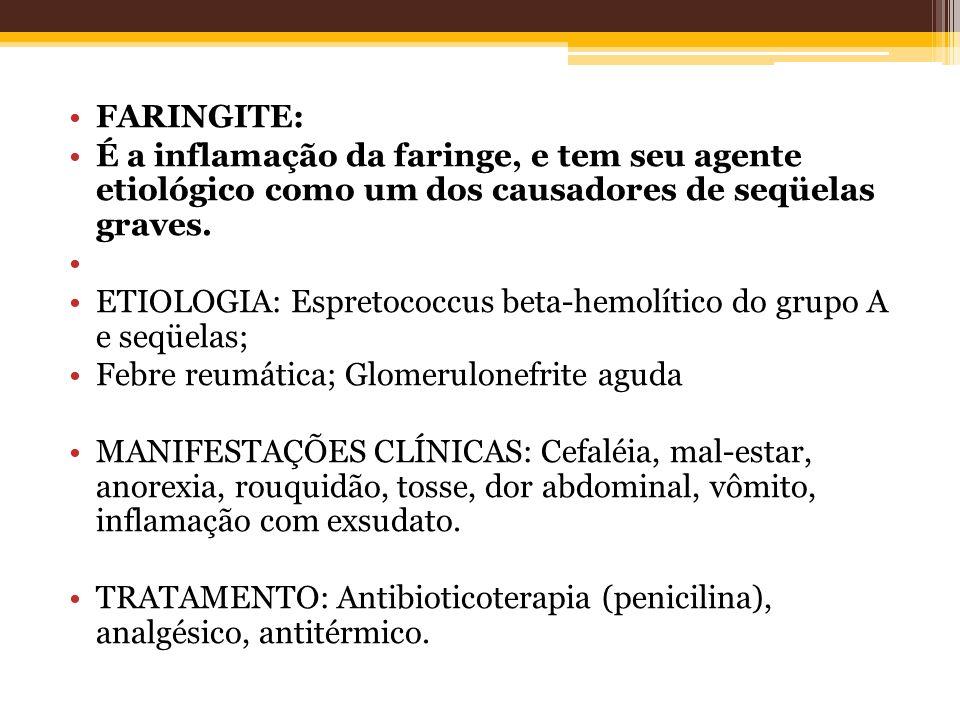 FARINGITE: É a inflamação da faringe, e tem seu agente etiológico como um dos causadores de seqüelas graves. ETIOLOGIA: Espretococcus beta-hemolítico