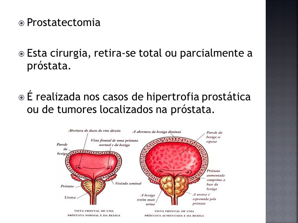 Prostatectomia Esta cirurgia, retira-se total ou parcialmente a próstata. É realizada nos casos de hipertrofia prostática ou de tumores localizados na