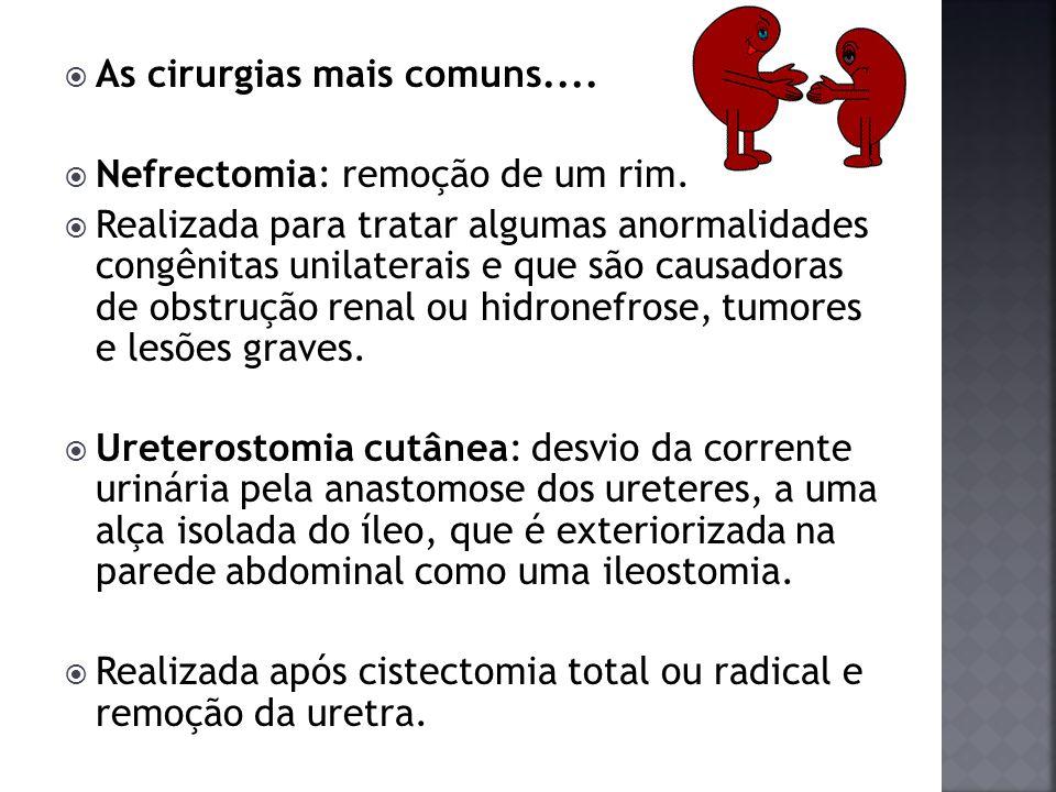 As cirurgias mais comuns.... Nefrectomia: remoção de um rim. Realizada para tratar algumas anormalidades congênitas unilaterais e que são causadoras d