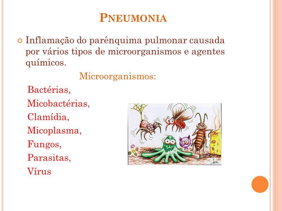 P NEUMONIA Inflamação do parênquima pulmonar causada por vários tipos de microorganismos e agentes químicos. Microorganismos: Bactérias, Micobactérias