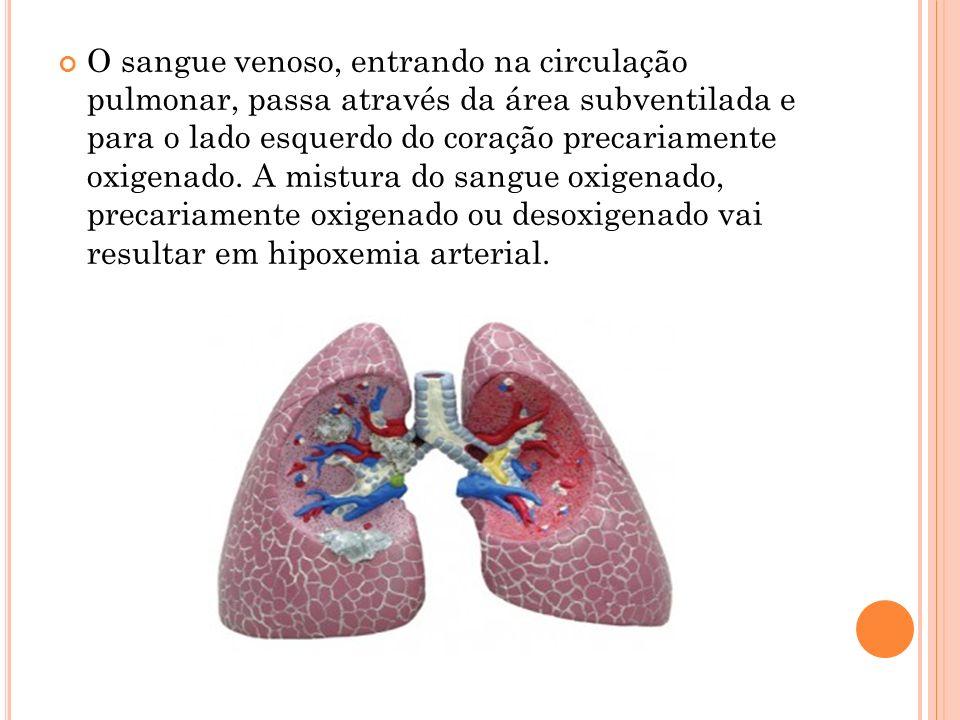 O sangue venoso, entrando na circulação pulmonar, passa através da área subventilada e para o lado esquerdo do coração precariamente oxigenado. A mist