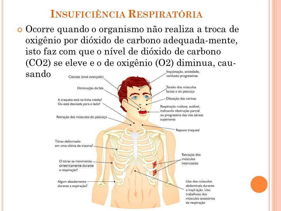 I NSUFICIÊNCIA R ESPIRATÓRIA Ocorre quando o organismo não realiza a troca de oxigênio por dióxido de carbono adequada-mente, isto faz com que o nível