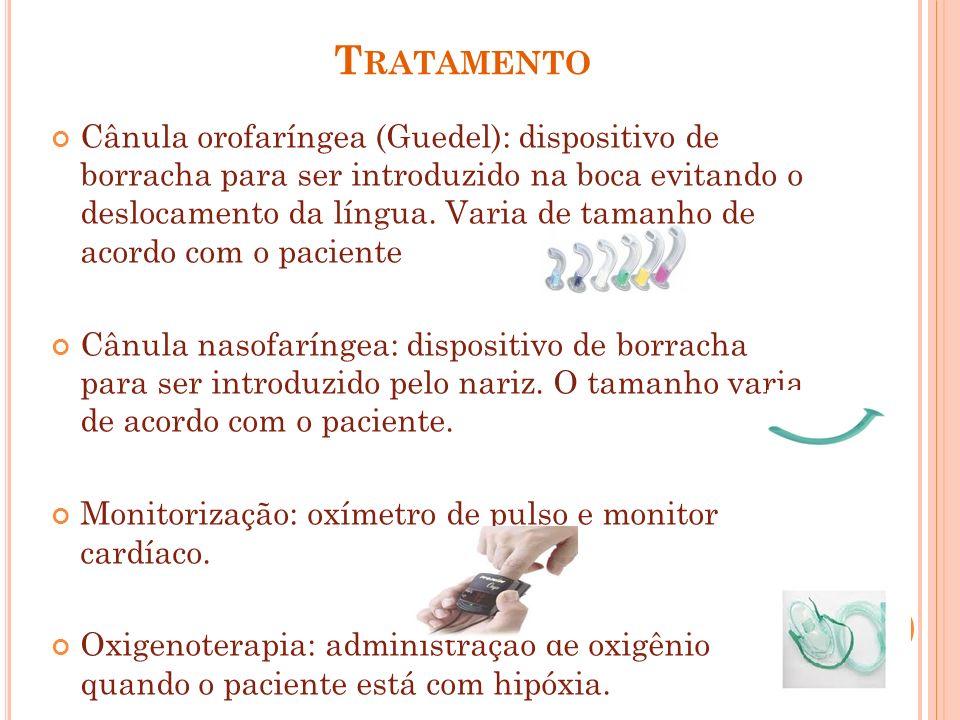 T RATAMENTO Cânula orofaríngea (Guedel): dispositivo de borracha para ser introduzido na boca evitando o deslocamento da língua. Varia de tamanho de a
