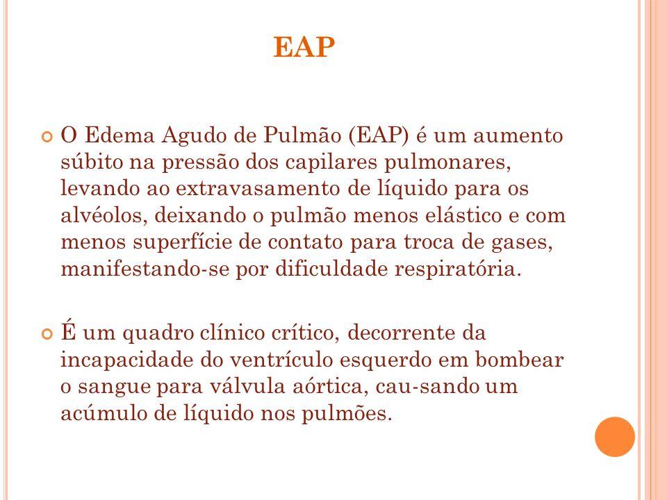 EAP O Edema Agudo de Pulmão (EAP) é um aumento súbito na pressão dos capilares pulmonares, levando ao extravasamento de líquido para os alvéolos, deix