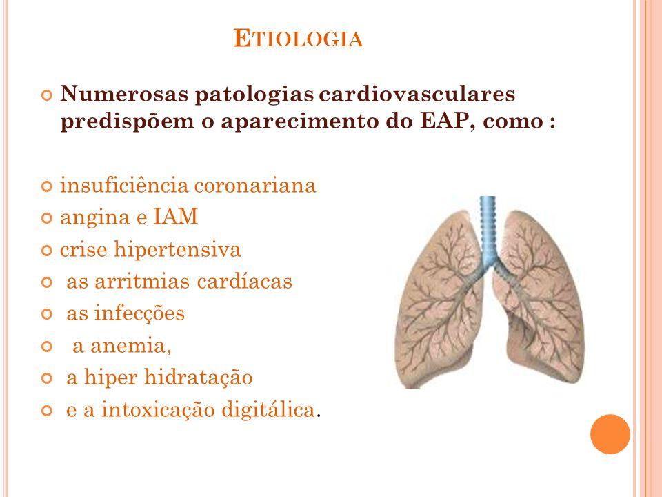 E TIOLOGIA Numerosas patologias cardiovasculares predispõem o aparecimento do EAP, como : insuficiência coronariana angina e IAM crise hipertensiva as
