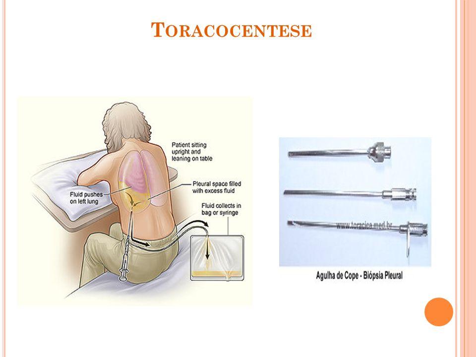 T ORACOCENTESE