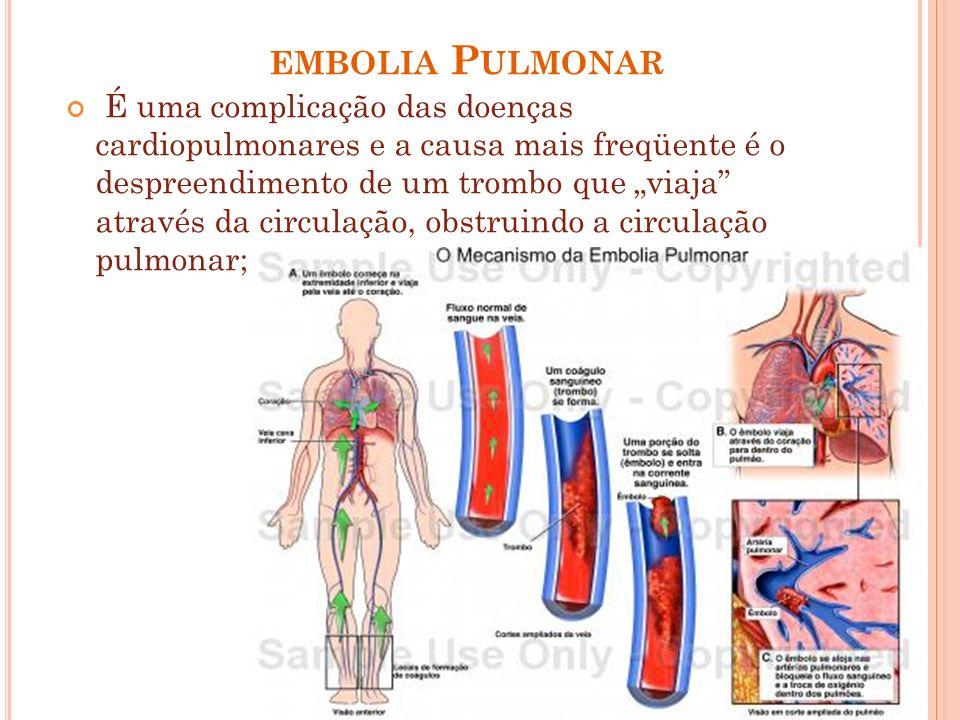 EMBOLIA P ULMONAR É uma complicação das doenças cardiopulmonares e a causa mais freqüente é o despreendimento de um trombo que viaja através da circul