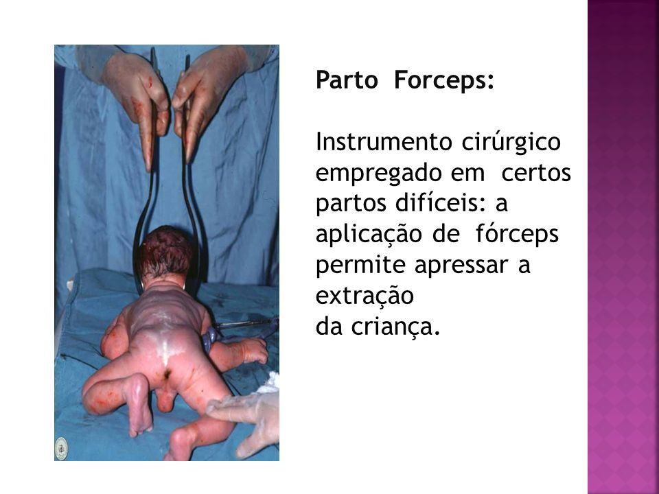 Parto Forceps: Instrumento cirúrgico empregado em certos partos difíceis: a aplicação de fórceps permite apressar a extração da criança.