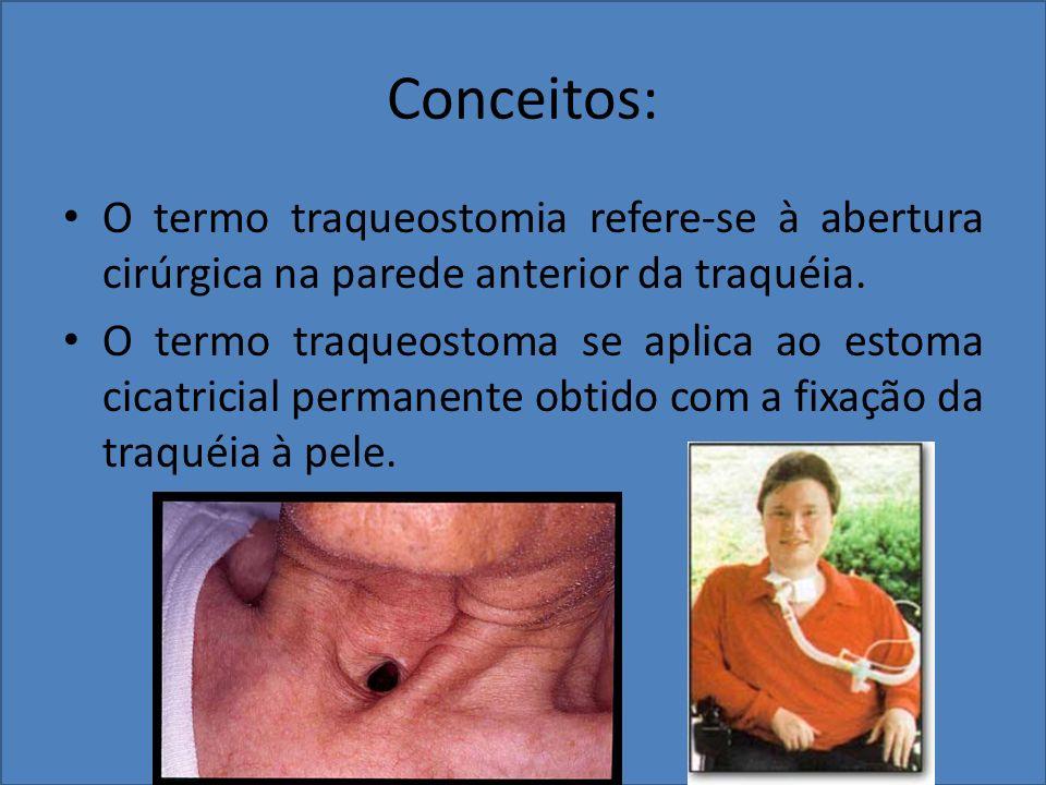 Conceitos: O termo traqueostomia refere-se à abertura cirúrgica na parede anterior da traquéia. O termo traqueostoma se aplica ao estoma cicatricial p