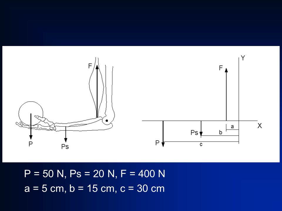 P = 50 N, Ps = 20 N, F = 400 N a = 5 cm, b = 15 cm, c = 30 cm