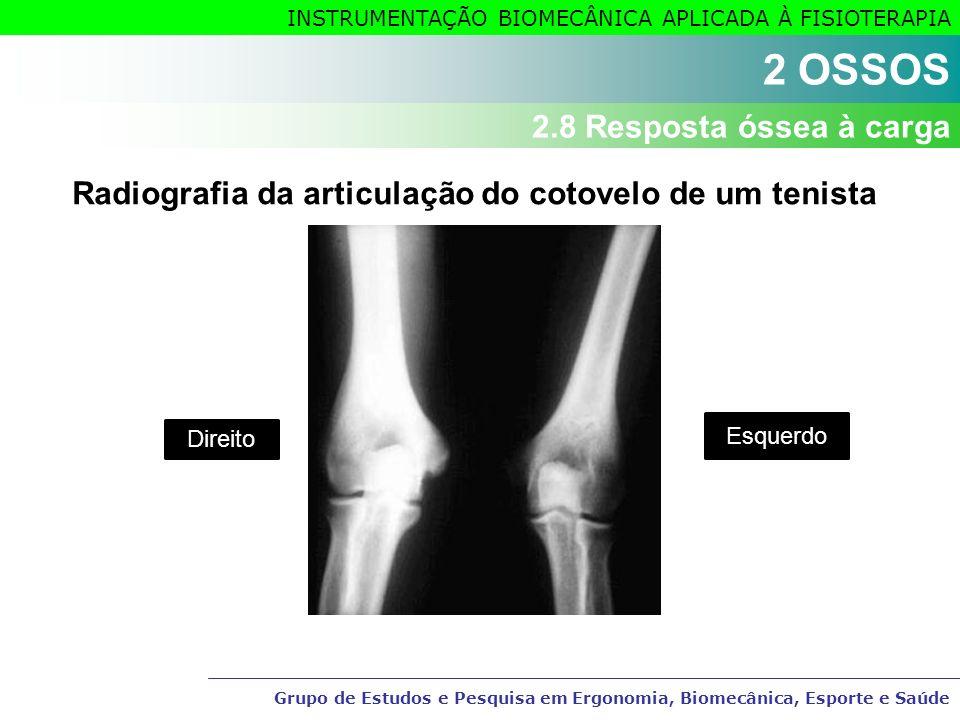 Grupo de Estudos e Pesquisa em Ergonomia, Biomecânica, Esporte e Saúde INSTRUMENTAÇÃO BIOMECÂNICA APLICADA À FISIOTERAPIA Radiografia da articulação d