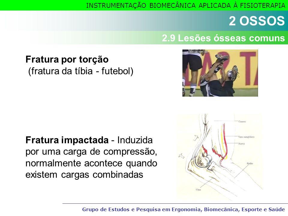 Grupo de Estudos e Pesquisa em Ergonomia, Biomecânica, Esporte e Saúde INSTRUMENTAÇÃO BIOMECÂNICA APLICADA À FISIOTERAPIA Fratura por torção (fratura