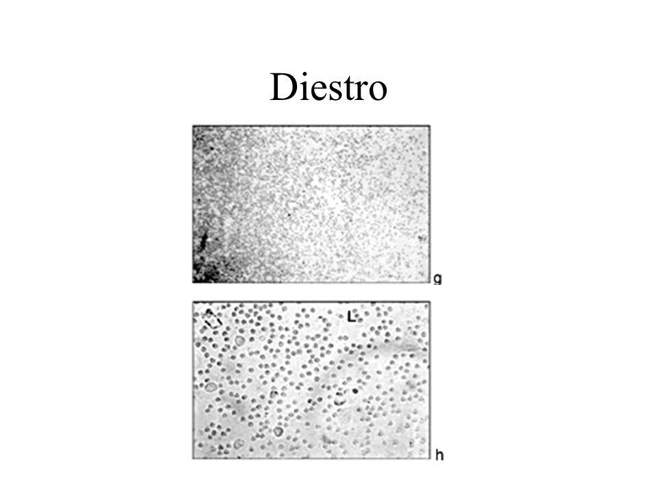 Diestro