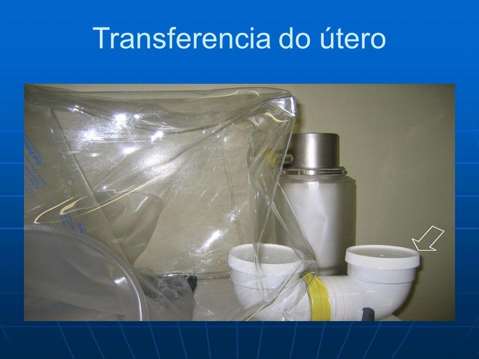 Transferencia do útero