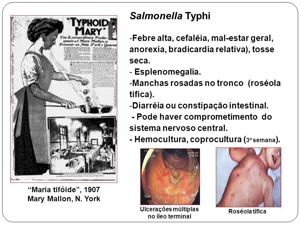 Maria tifóide, 1907 Mary Mallon, N. York Salmonella Typhi -Febre alta, cefaléia, mal-estar geral, anorexia, bradicardia relativa), tosse seca. - Esple