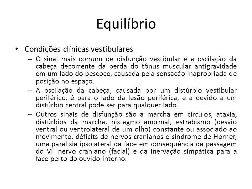 Equilíbrio Condições clínicas vestibulares – O sinal mais comum de disfunção vestibular é a oscilação da cabeça decorrente da perda do tônus muscular