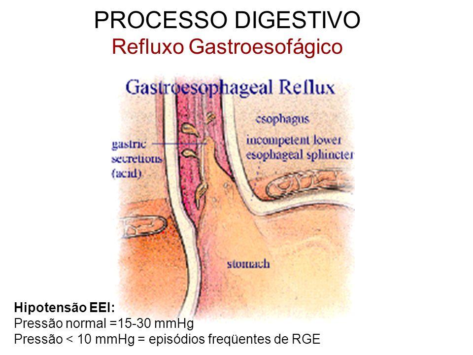 PROCESSO DIGESTIVO Refluxo Gastroesofágico Hipotensão EEI: Pressão normal =15-30 mmHg Pressão < 10 mmHg = episódios freqüentes de RGE