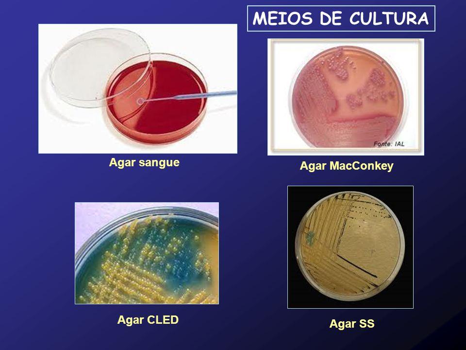 Agar sangue Agar MacConkey Agar SS Agar CLED MEIOS DE CULTURA