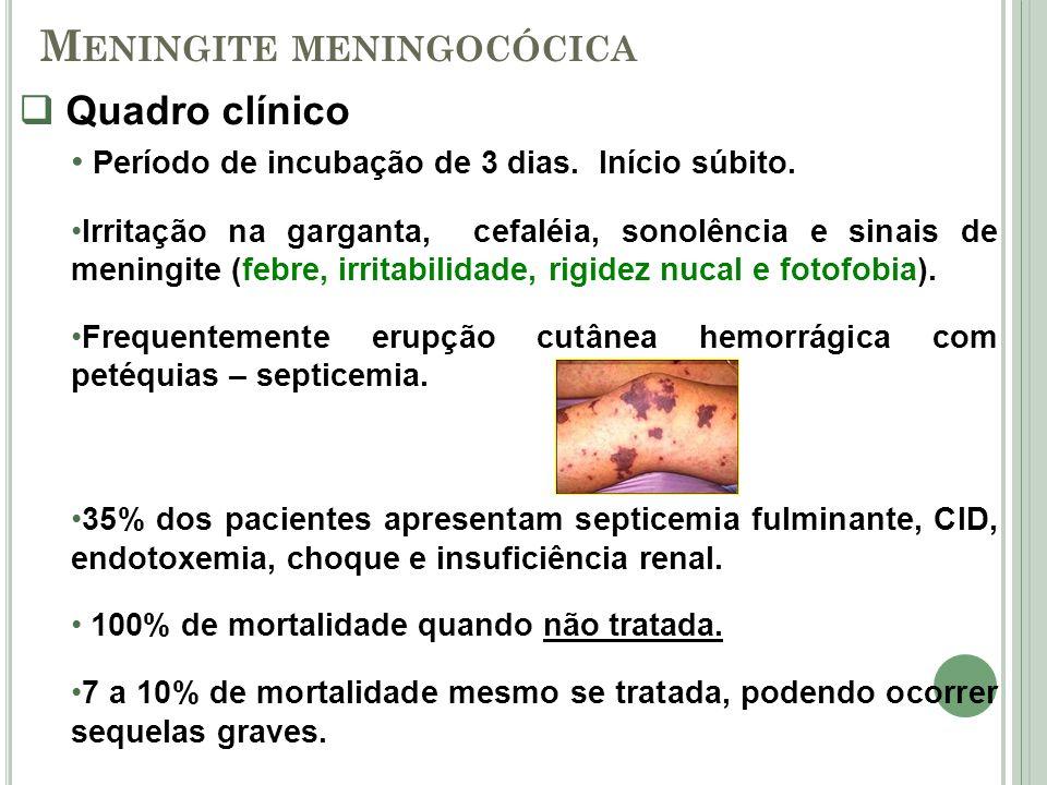 Quadro clínico Período de incubação de 3 dias. Início súbito. Irritação na garganta, cefaléia, sonolência e sinais de meningite (febre, irritabilidade